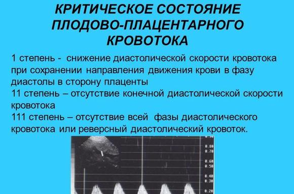 imagesnarushenie-plodovo-platsentarnogo-krovotoka-1b-stepeni-thumb.jpg