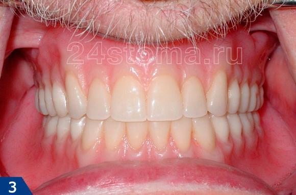 imagessjomnye-protezy-zubov-otzyvy-thumb.jpg