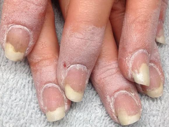 Болит ноготь на большом пальце ноги чем лечить