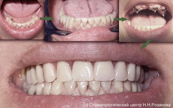 съемные зубные виниры купить