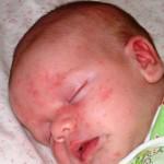 Прыщики, пятна, высыпания, сыпь, потница у новорожденного на лице