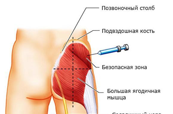 imageszaschemlenie-sedalischnogo-nerva-lechenie-ukoly-thumb.jpg